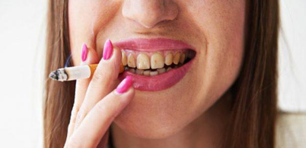 comment faire pour avoir des dents compl tement blanches. Black Bedroom Furniture Sets. Home Design Ideas