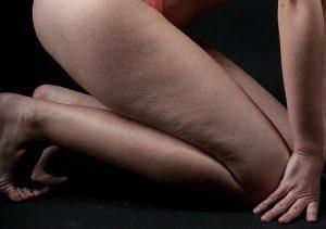 Femme cellulite