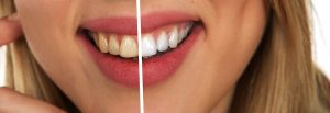 Top 3 des astuces pour blanchir les dents